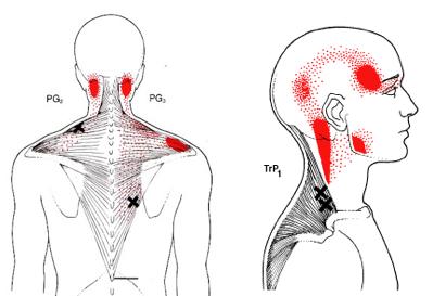 La elongacion es lo que cuenta - 1 part 7